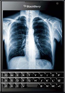 Röntgenbild auf Smartphone