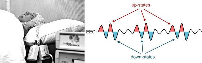 Messung der Hirnströme im Schlaflabor per EEG.